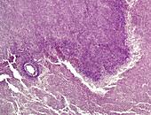 Neuro astrocytoma, light micrograph