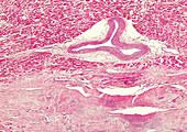 Myocardial fibrosis, light micrograph