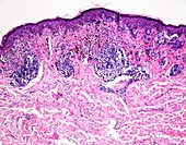 Melanoma with partial regression, light micrograph