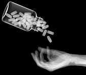 Pills pouring into a hand, X-ray