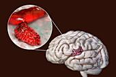 Haemorrhagic stroke, illustration