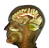 Multiple sclerosis, sagittal brain MRI scan