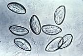 Eggs of human pinworm parasite, light micrograph