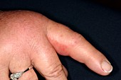 Allergic reaction to bee sting