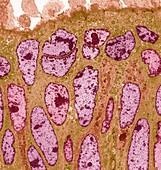 Colon cancer, TEM