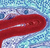 Myelinated nerve detail, TEM