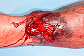 Wound and haematoma on leg