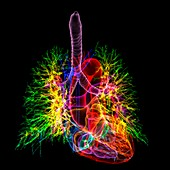 Healthy heart and lungs, 3D CT scan