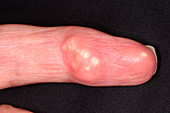 Gout in the finger