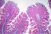 Human large intestine tissue, light micrograph