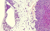 Adrenal cortical cancer, light micrograph