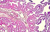 Fallopian tube ampulla, light micrograph