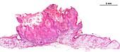 Actinic keratosis, light micrograph