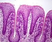 Foliate papillae with taste buds, light micrograph