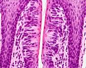Taste buds, light micrograph
