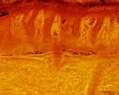 Skin sensory receptors, light micrograph