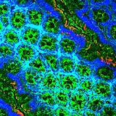 T lymphocytes in the colon, light micrograph
