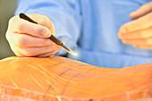 Surgeon making incision
