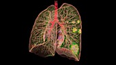 Lungs affected by Covid-19 pneumonia, 3D CT scan