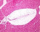 Pacinian corpuscle, light micrograph