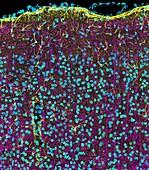 Brain cortex tissue, confocal light micrograph