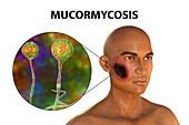 Cutaneous mucormycosis, illustration