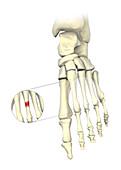 Stress fracture, illustration