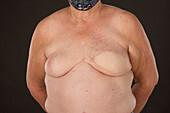 Patient with burns following radiotherapy and spider veins
