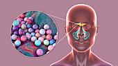 Sinusitis, illustration