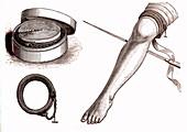 Lower leg amputation, 19th century illustration