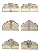 Types of volcano, illustration