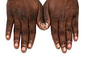 Hyperpigmentation due to vitamin B12 deficiency