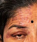 Shingles affecting the eye