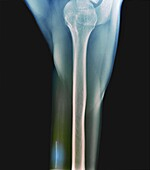 Contraceptive implant, X-ray