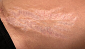 Stretch marks in Cushing syndrome