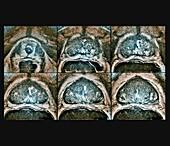 Prostate cancer, MRI scan