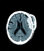 Merkel cancer, CT scan