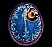 Brain abscess, MRI scan