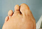 Right foot actinomycetoma