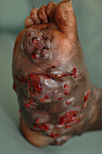 Foot of a mycetoma patient