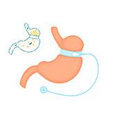 Adjustable gastric band bariatric surgery, illustration