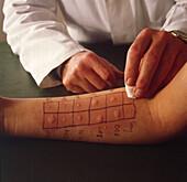 Allergy Test Allergietest