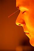 Man receiving acupunktur treatment, alternative medicine, Ondavital Club, Canico de Baixo, Madeira, Portugal