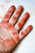 Blood, Color, Colour, Criminal, Death, Dread, hand, hands, Horror, Killer, Killers, Murder, Murderer, Murderers, Murders, Red, Terror, Thriller, Vertical, Victim, Victims, Violence, XW6-921006, agefotostock
