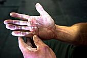 Close-up of an athletes hands after an intense workout.