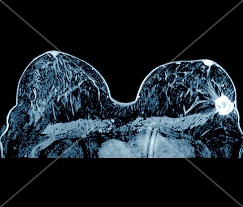 Breast cancer,MRI scan
