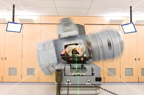 Prostate cancer radiotherapy, timelapse image